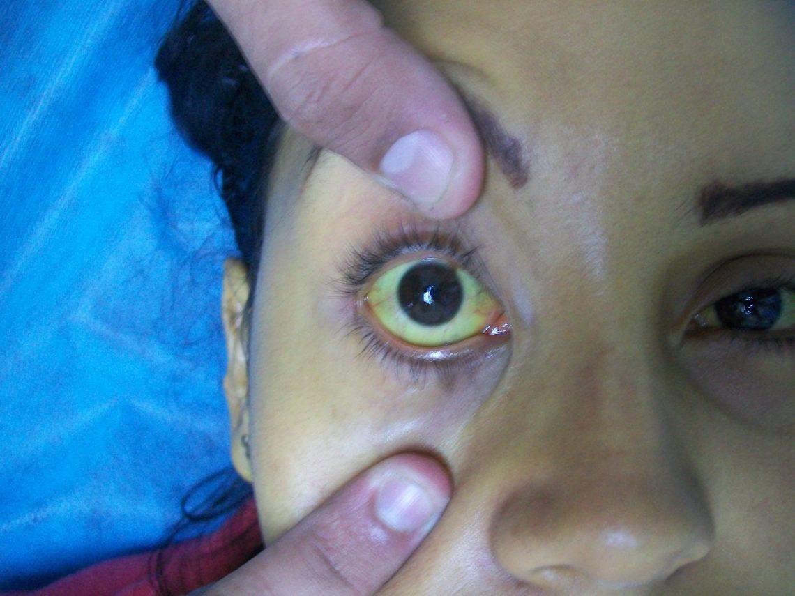 Virus dell'epatite mutato? Casi di esseri umani infetti da epatite da ratto