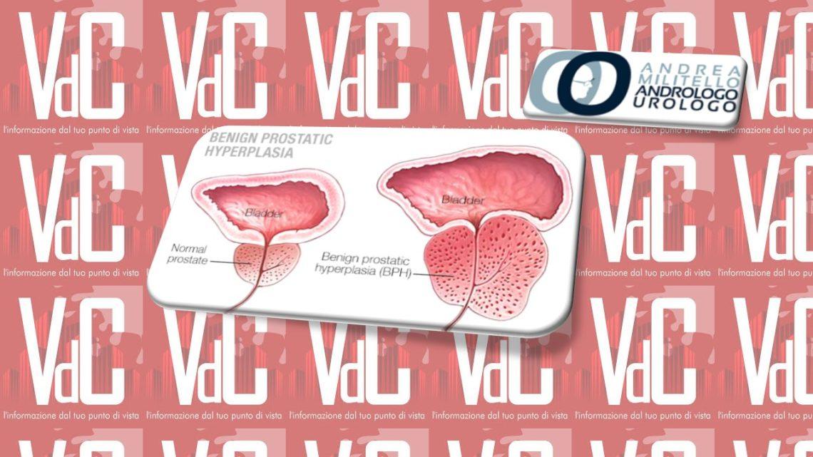 La finasteride, il farmaco che cura la prostata. Ma quanto?