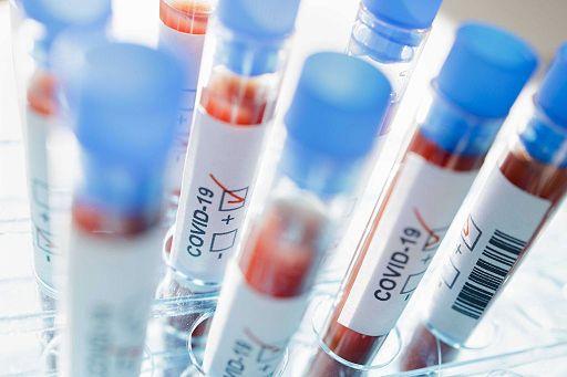 Un anno di Coronavirus: ricerche già compiute e quelle future per capirne le origini
