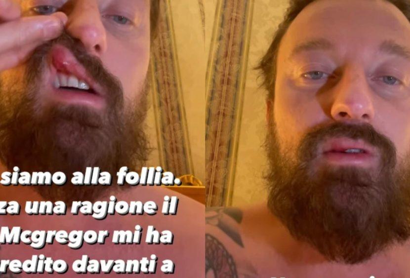 """Francesco Facchinetti: """"Conor McGregor mi ha dato un pugno, l'ho denunciato"""""""